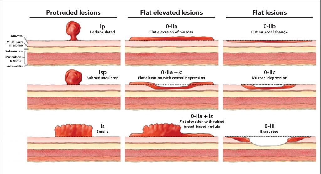 paris classification for polyps